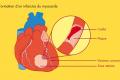 Santé / Cholestérol et infarctus : faut-il avoir peur ?