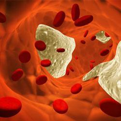 Santé / Cholestérol et infarctus : faut-il avoir peur